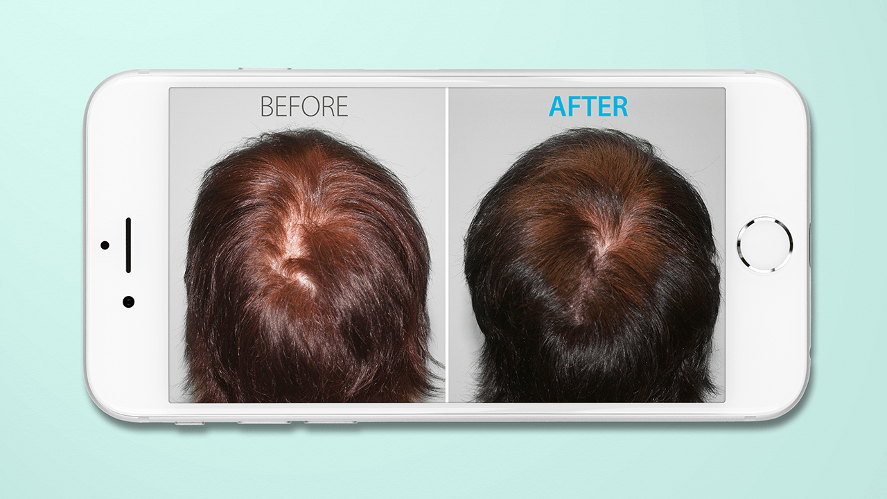 hair loss before and after photos